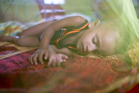 Bangladesh. Malnourished child