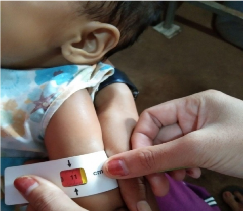 Health staff conducts a nutritional screening activity at Pril village, Borkham commune, Borkeo district, Ratanakiri province, to detect severe acute malnutrition cases among vulnerable children.