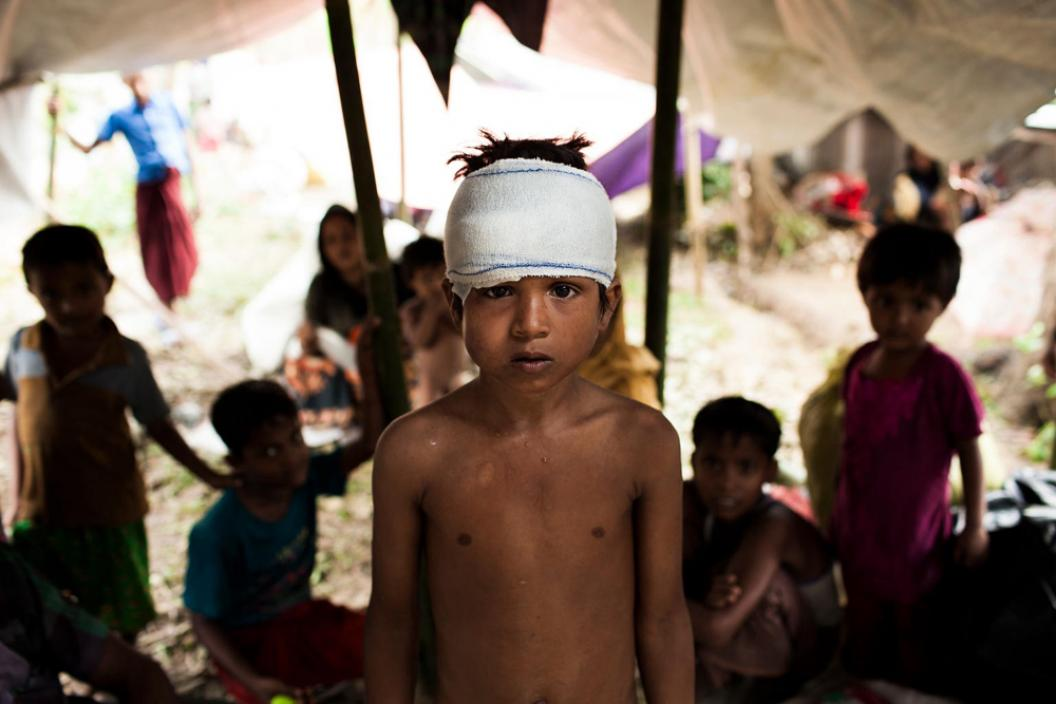 Rohingya children, attacked in and driven from their homes, fled Myanmar to seek refuge in in neighbouring Bangladesh. Mohammed Yasin, 8, is among newly arrived Rohingya sheltering in the Kutupalong makeshift refugee camp in Bangladesh's Cox's Bazar district