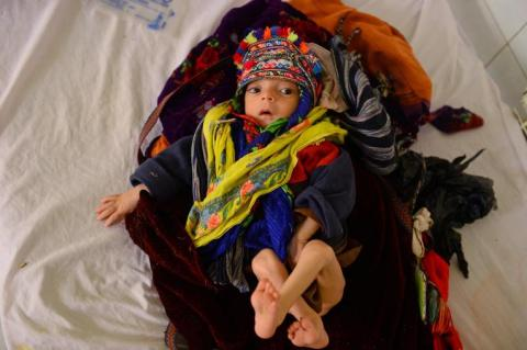 mid, ten months malnourished child suffering from pneumonia is treated in Mofleh Pediatric Hospital in the province of Herat province, west of Afghanistan on January 29, 2019.