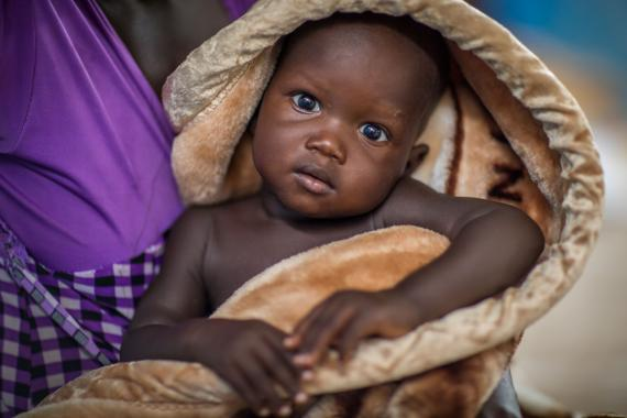 One-year old Tasloch Char under his mother's arms waits their turn for health checks and supplemental food at a Visit Community Based Management of Acute Malnutrition (CMAM) and Infant and Young Child YCF Nutrition Programme in Tierkidi, GOAL Ethiopia Nutrition center at Tierkidi camp in Gambela region of Ethiopia