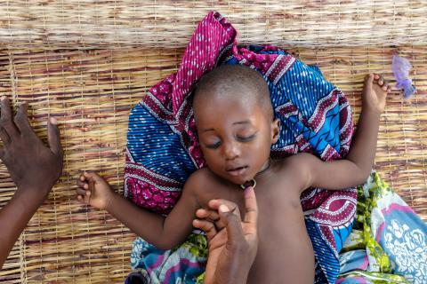 Shahaban Abdul Rahman (2) naps while her mother applies iodine to her chin in village of Gbullahagu in the Northern Region of Ghana on 25 May 2015.