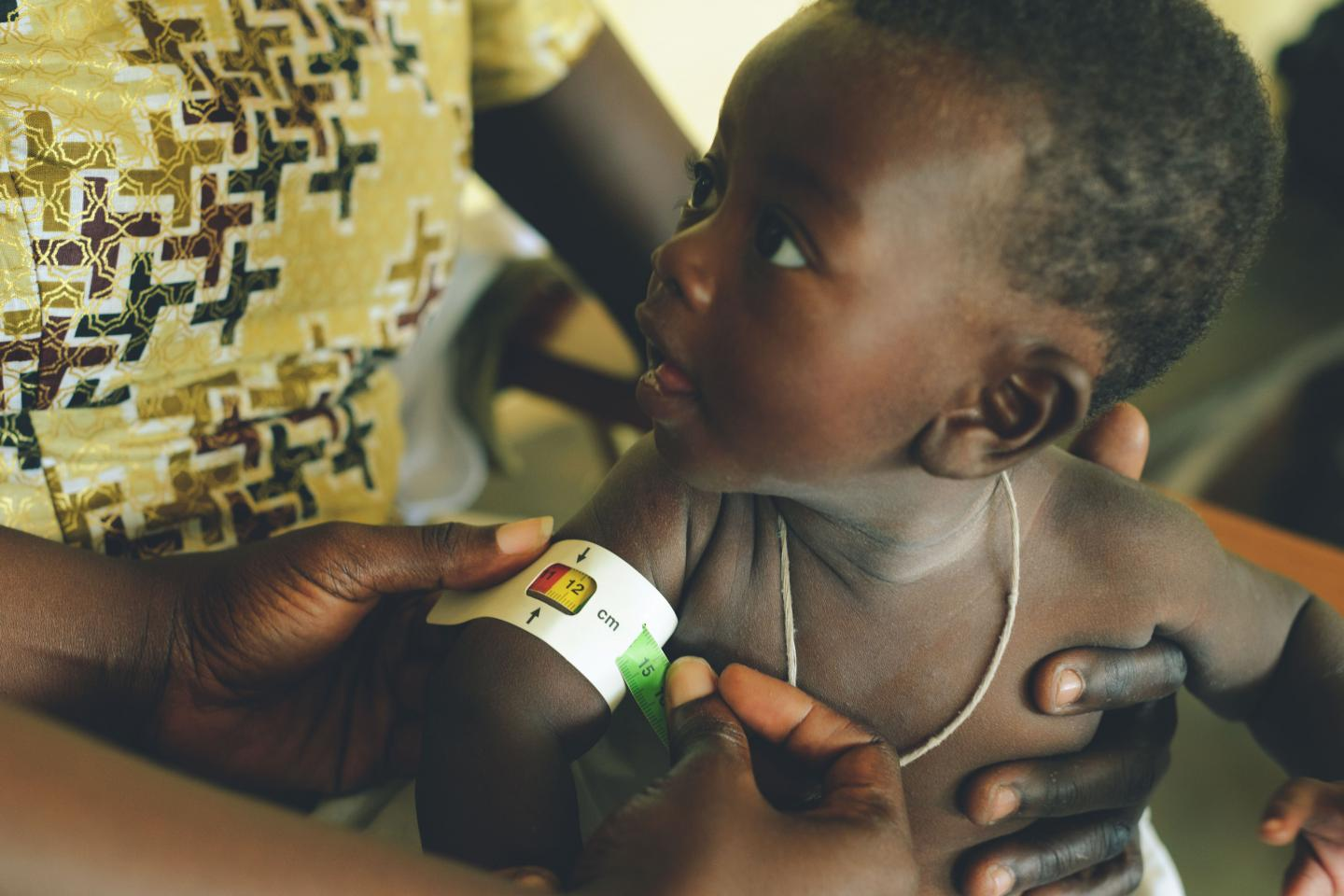 Child is being measured for malnutrition using a Mid Upper Arm Circumference band