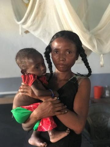 a mother and her severely malnourished child