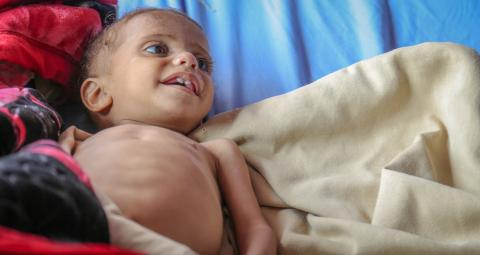 A baby suffering from malnutrition