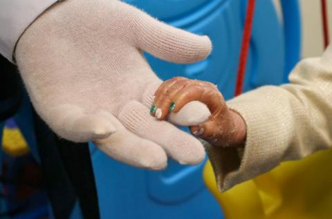 a child's hand with skin condition holding a gloved hand of an adult