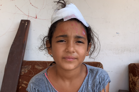 a girl with a head injury
