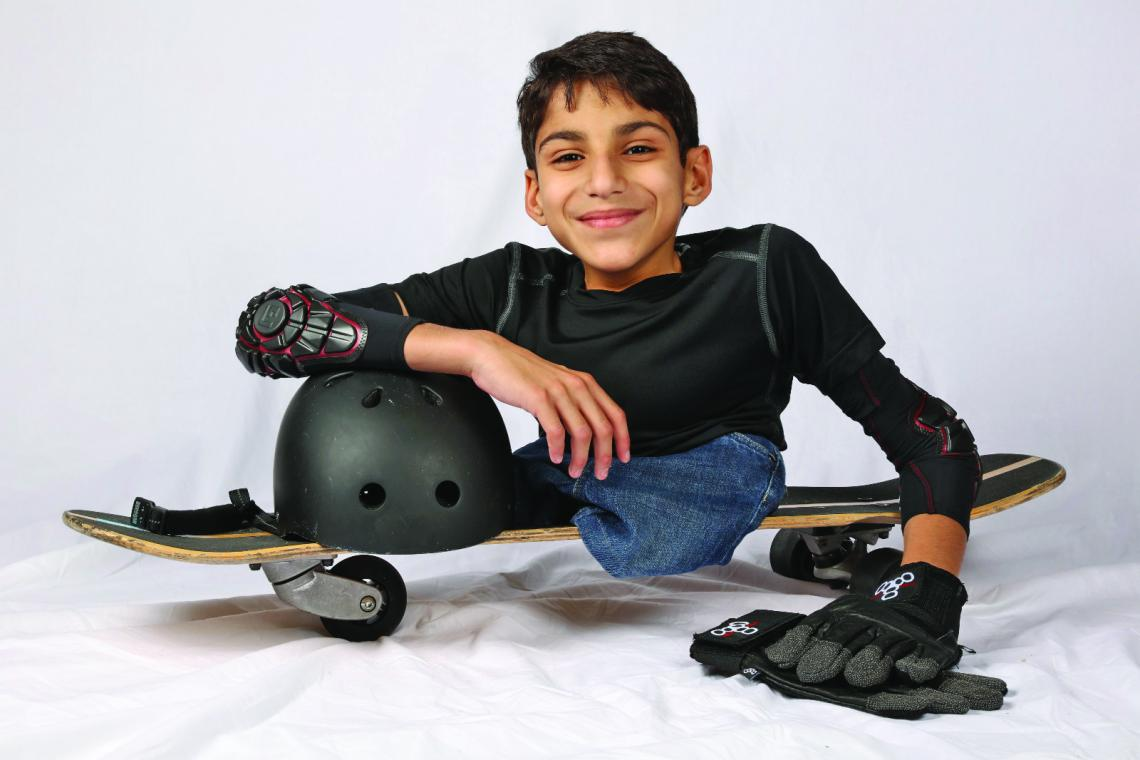 A kid without legs holding his helmet on a skate board