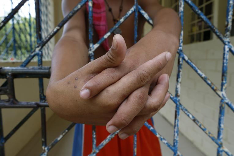 A child in conflict with the law outstretches his arms from gaps in a metal grille at a juvenile detention facility