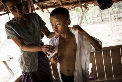 A ten-year-old boy in Myanmar shows a large scar from injuries he sustained while playing with an explosive remnant of war in 2017.