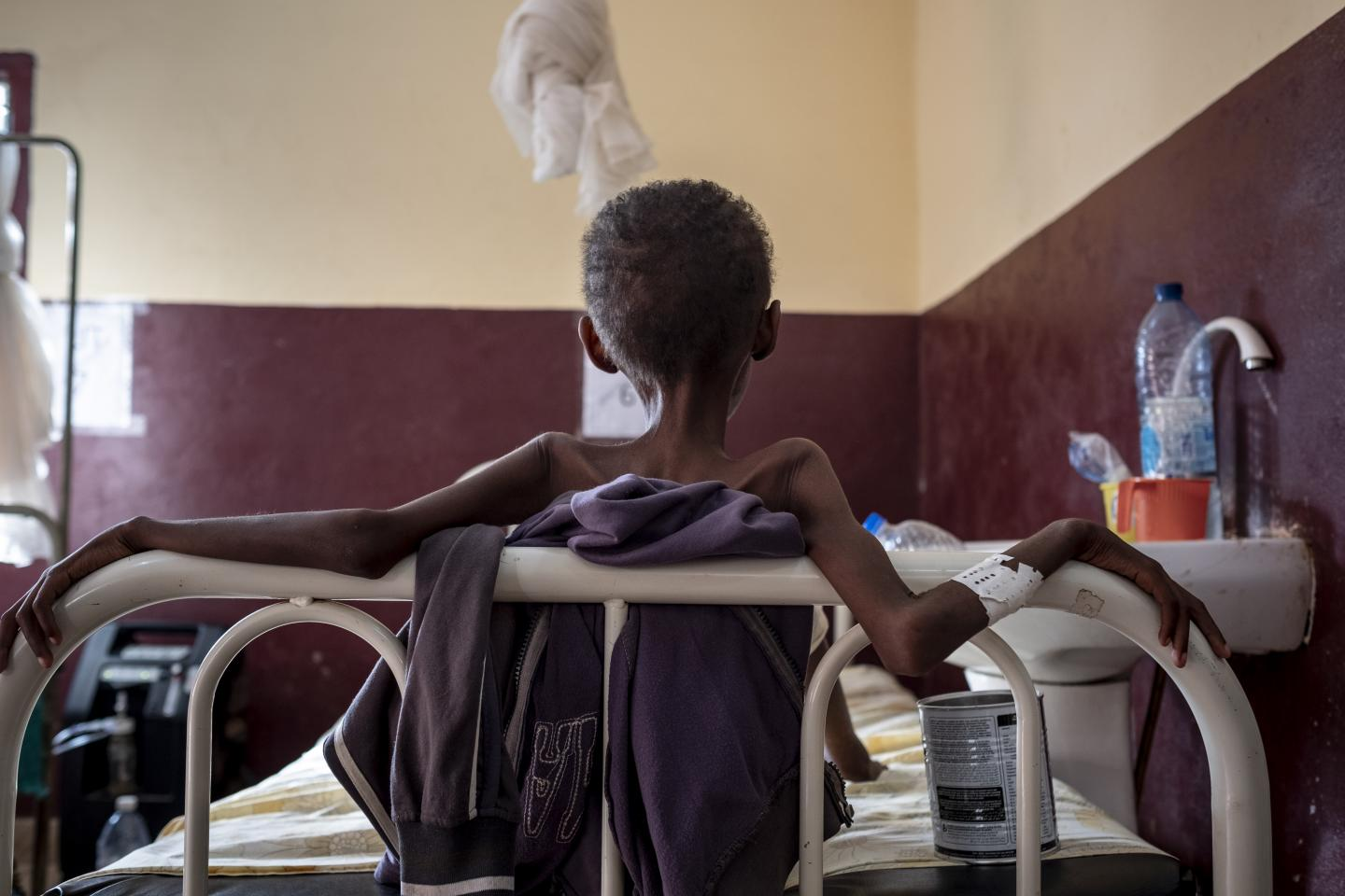 Central African Republic. A child is treated for malnutrition in Bangui
