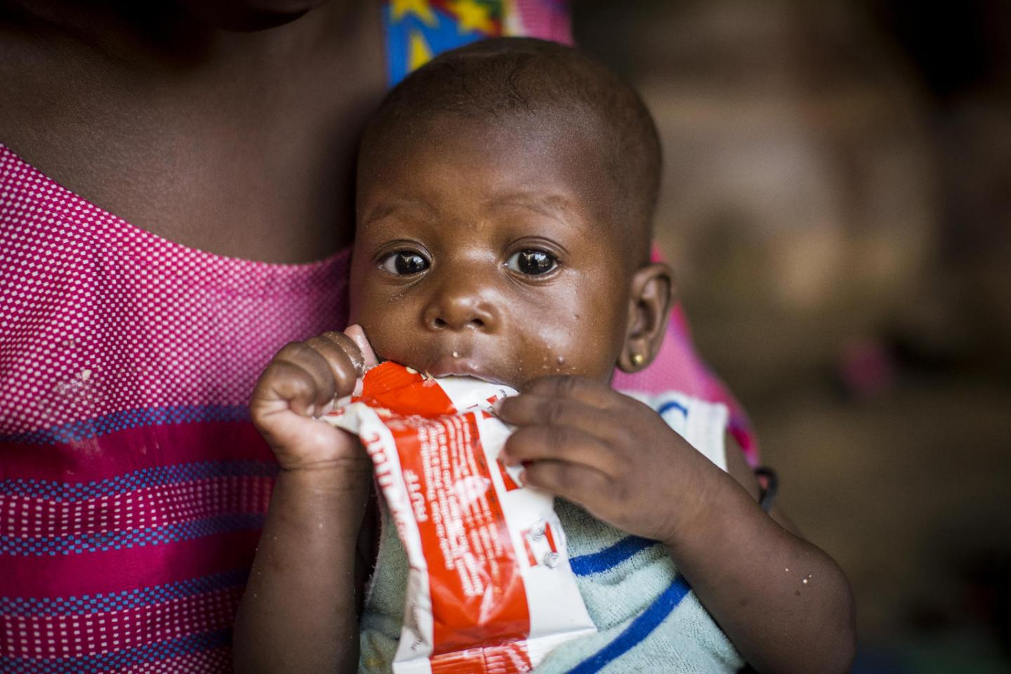 UNICEF: An additional 6.7 million children under 5 could suffer from wasting this year due to COVID-19