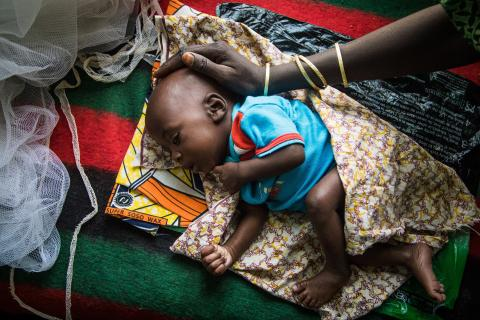 A woman caresses the head of her sleeping malnourished baby, at the mother and child centre in the town of Diffa, in the Diffa region on 20 February 2017.