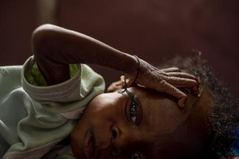 Esther Wandana, 9 months old, is suffering from severe acute malnutrition, malaria and HIV, at the UNICEF supported Pediatric Hospital, in Bangui, Central African Republic on September 10, 2018.