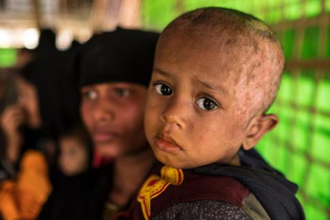 Rohingya refugee Muhammad, 2, was severely burned when the Myanmar military set fire to his house in Myanmar.