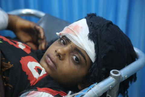 A girl lies in hospital in Hodeidah, Yemen