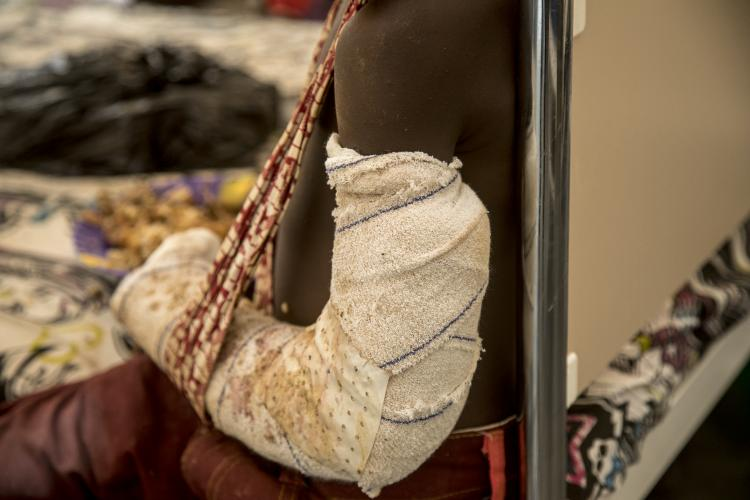 Mali. An injured boy shows a bandaged arm.