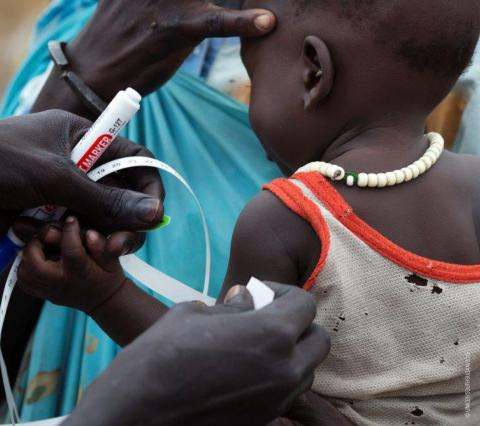 A child is checked for malnutrition
