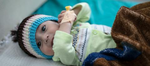 A seven-month-old boy, who has totally recovered from malnutrition in Sana'a in Yemen, February 2020.