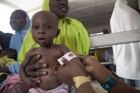 Little Mohammed is one of the more than 440,000 children in northeast Nigeria suffering from severe acute malnutrition