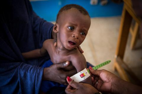 Seated on the lap of his mother, Okachatata Ichaka, 16 months old, is found to be suffering from severe acute malnutrition during a screening at the health center of reference in Gao.