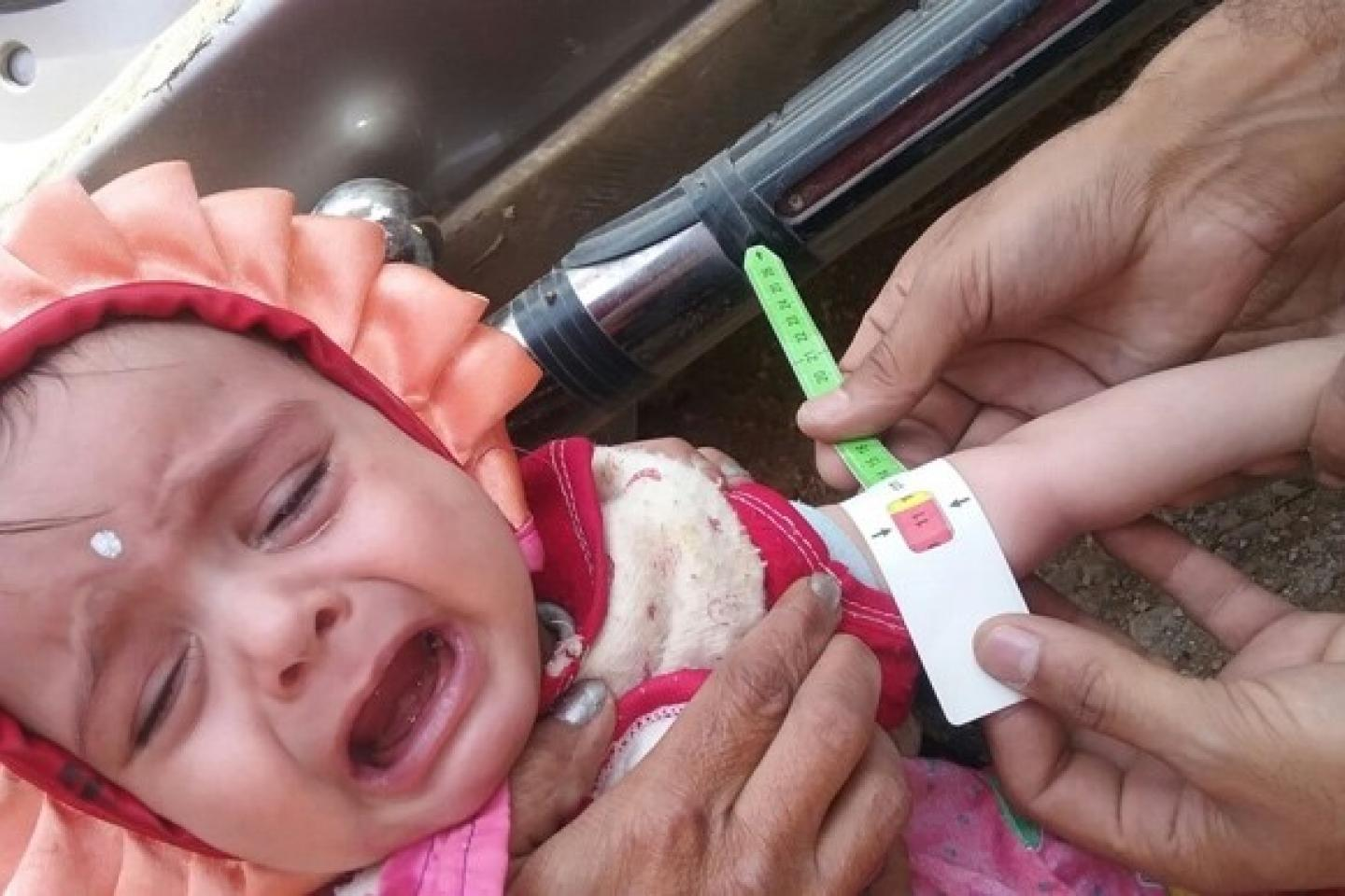 Before receiving treatment, the baby girl is assessed for severe acute malnutrition
