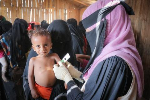Baby Mohammed is screened for malnutrition by a mobile health team in an IDP centre in Aden