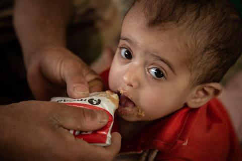 A malnourished child receives treatment at a camp for families displaced in Yemen