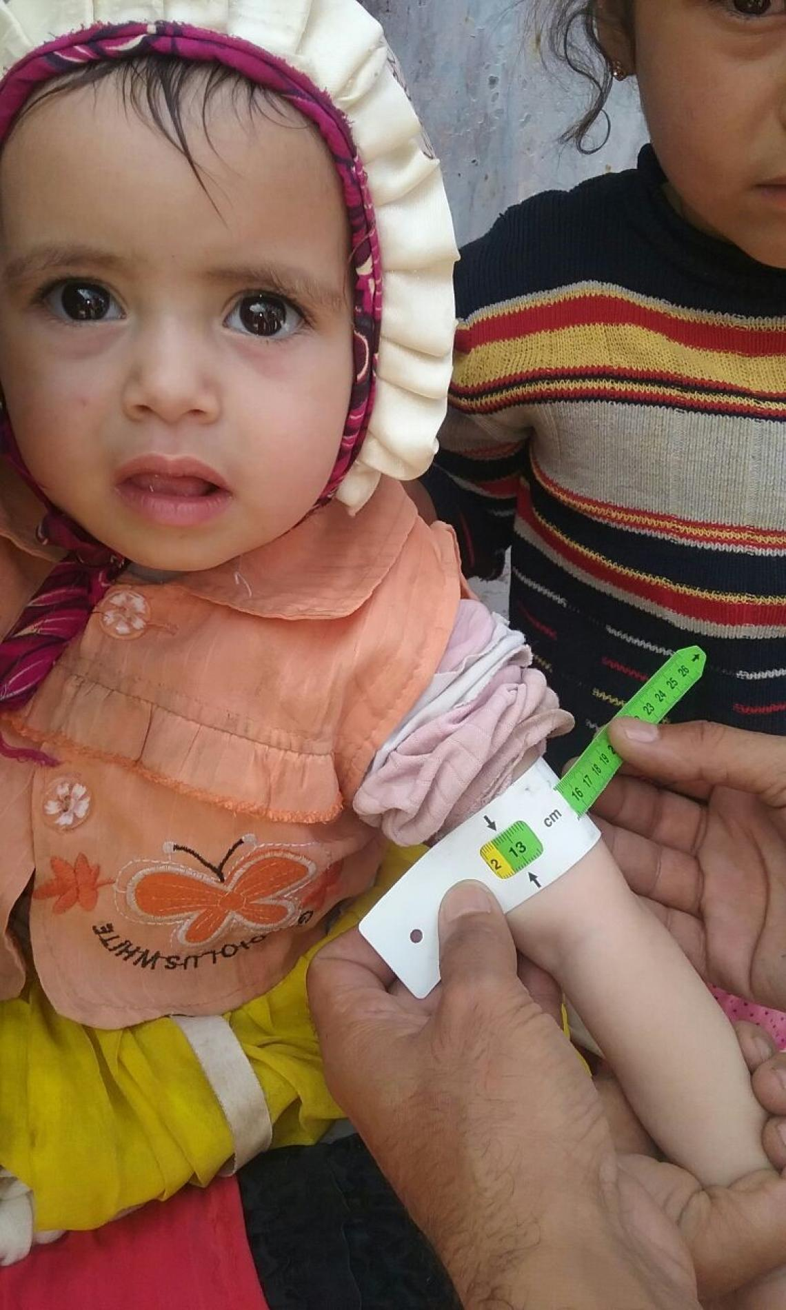 A yemeni child after 3 months of treatment in the outpatient therapeutic feeding programme